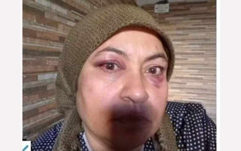 Afrin... The assault on a Kurdish woman after her demand to vacate her home