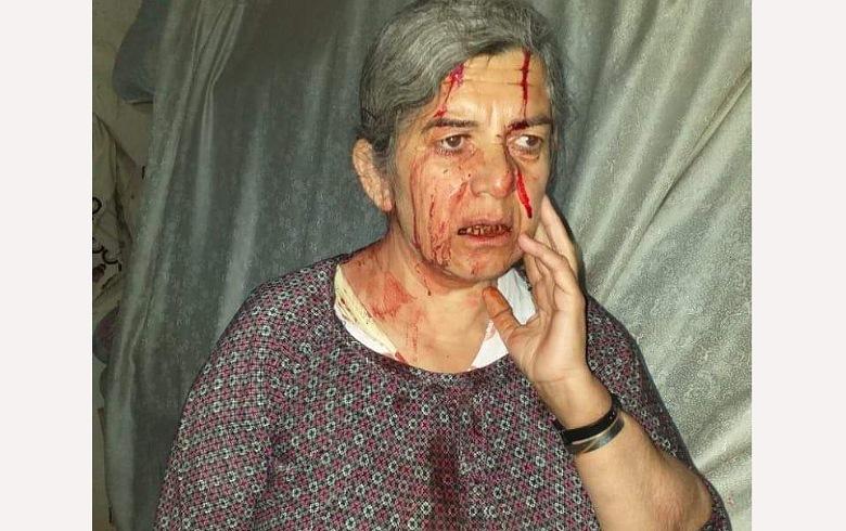 تفاصيل الاعتداء على مُسنين كورديين من قبل مسلحي PYD في ديريك
