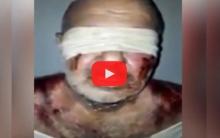 عفرين .. كورديٌ يتعرض للتعذيب الوحشي (فيديو)